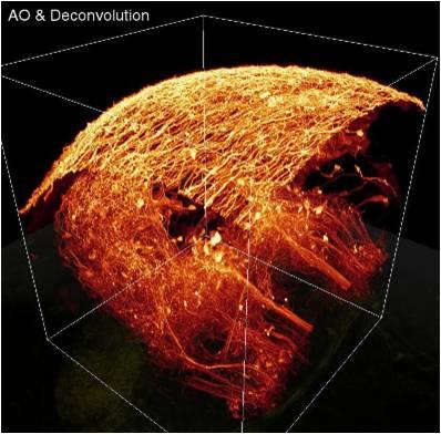 Imagerie à deux photons avec optique adaptative  et déconvolution
